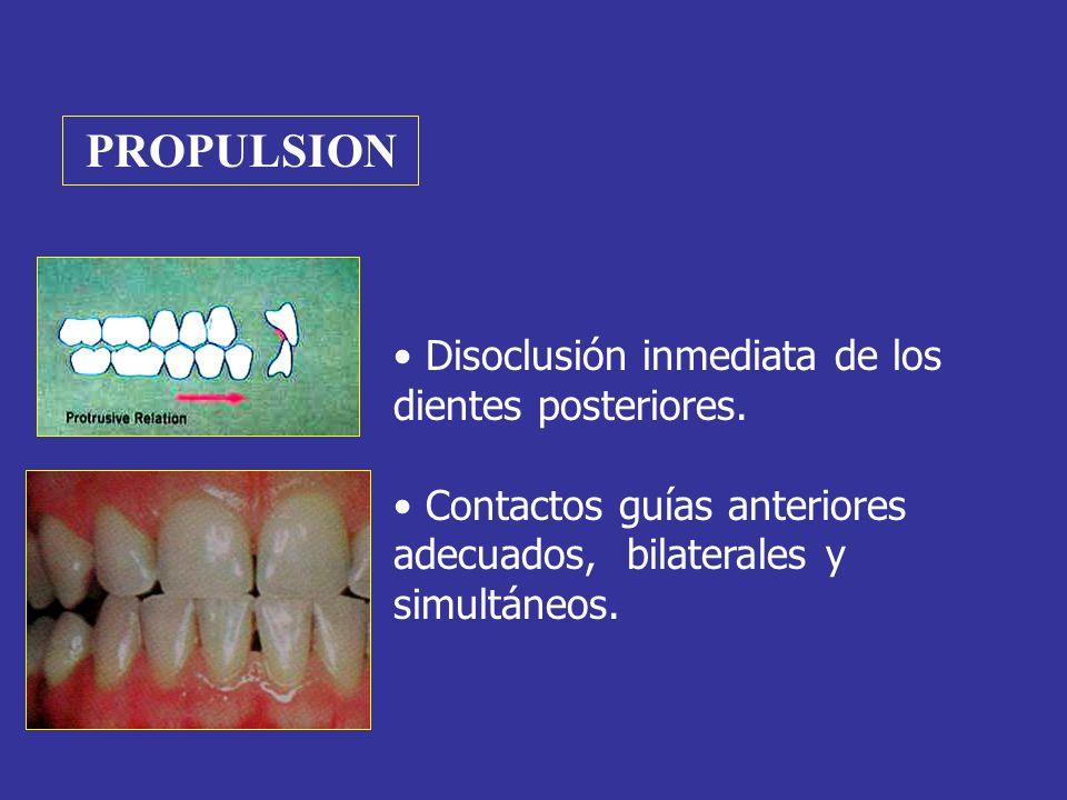 PROPULSION Disoclusión inmediata de los dientes posteriores. Contactos guías anteriores adecuados, bilaterales y simultáneos.