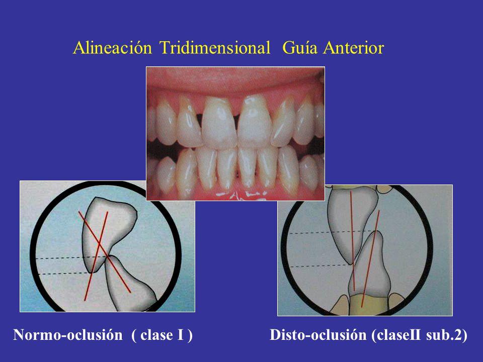 Normo-oclusión ( clase I ) Disto-oclusión (claseII sub.2) Alineación Tridimensional Guía Anterior