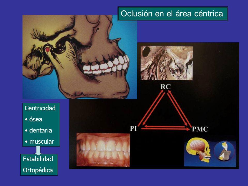 Estabilidad Ortopédica Centricidad ósea dentaria muscular Oclusión en el área céntrica