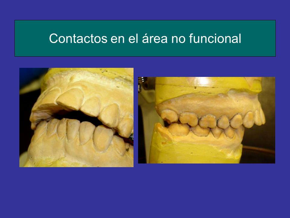 Contactos en el área no funcional