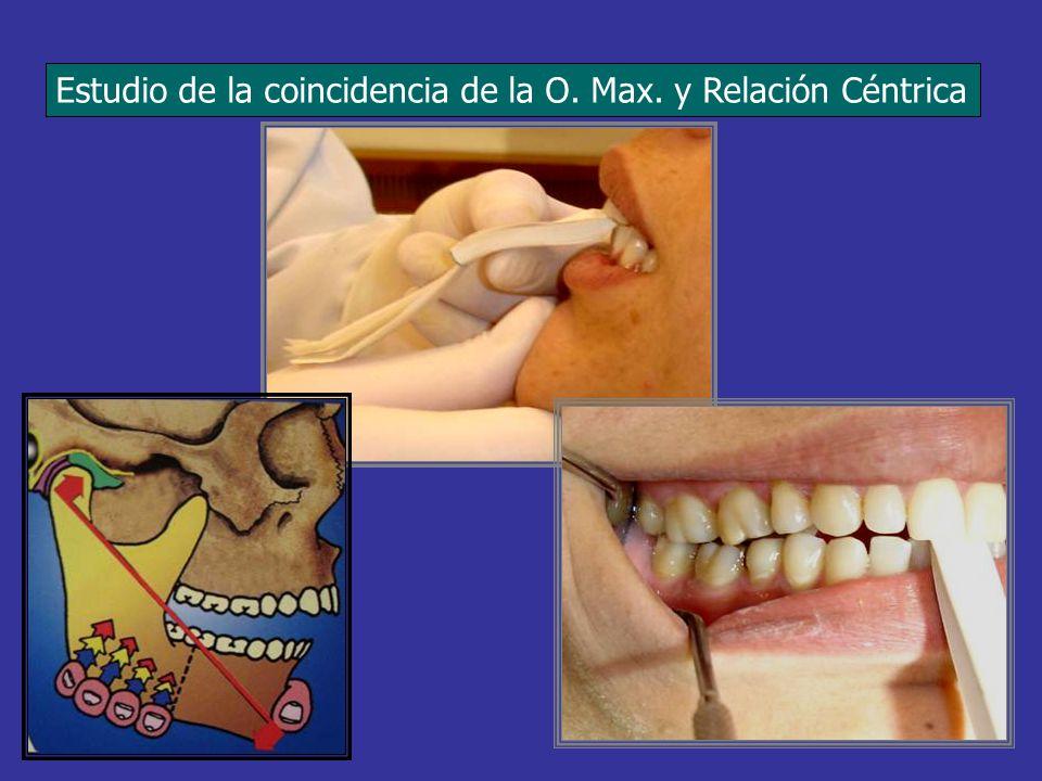 PROPULSION Disoclusión inmediata de los dientes posteriores.