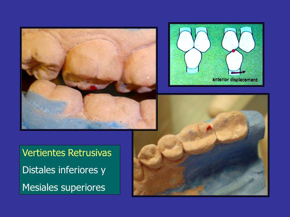 PALANCA DE 3º GÉNERO Apoyo o Punto Fijo - ATM Potencia - Músculos Elevadores Resistencia - Contacto Dentario Protectora para el sistema por ser la menos eficaz PA P R