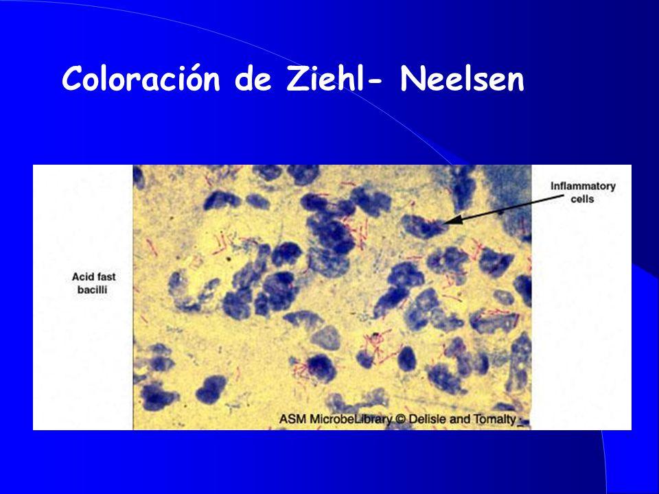 Coloración de Ziehl- Neelsen