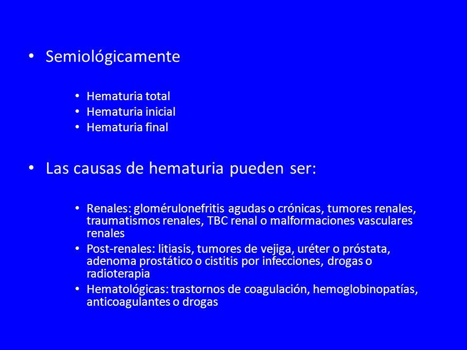 Semiológicamente Hematuria total Hematuria inicial Hematuria final Las causas de hematuria pueden ser: Renales: glomérulonefritis agudas o crónicas, tumores renales, traumatismos renales, TBC renal o malformaciones vasculares renales Post-renales: litiasis, tumores de vejiga, uréter o próstata, adenoma prostático o cistitis por infecciones, drogas o radioterapia Hematológicas: trastornos de coagulación, hemoglobinopatías, anticoagulantes o drogas