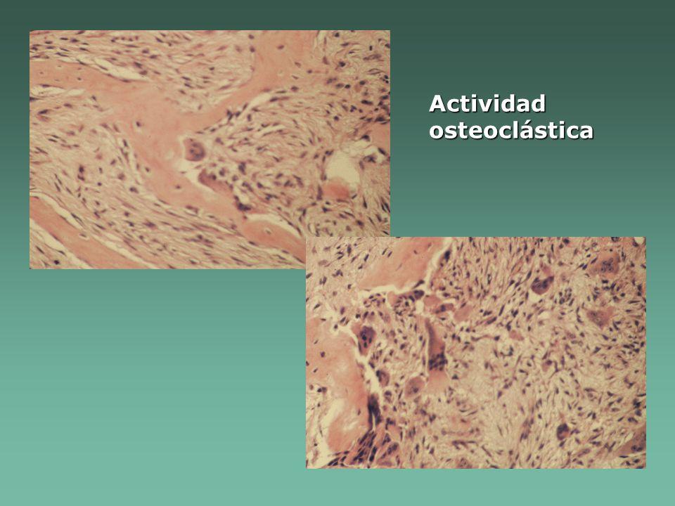 Actividad osteoclástica