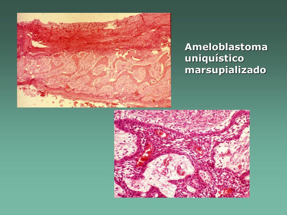 Ameloblastoma uniquístico marsupializado