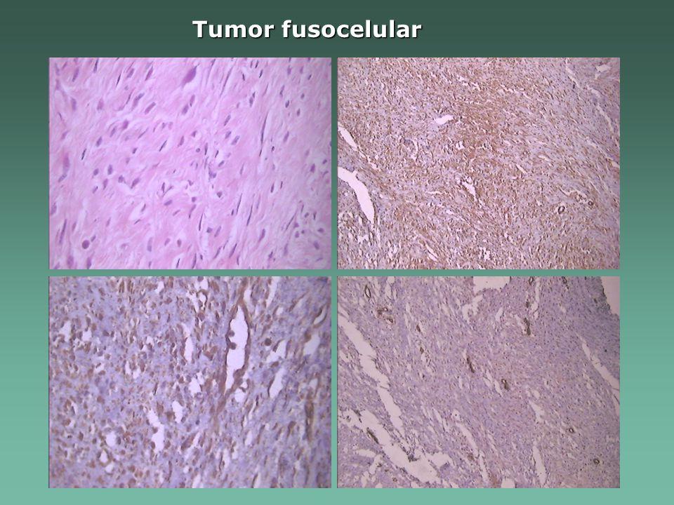 Tumor fusocelular
