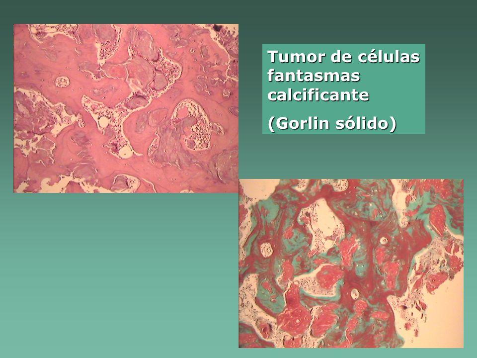 Tumor de células fantasmas calcificante (Gorlin sólido)
