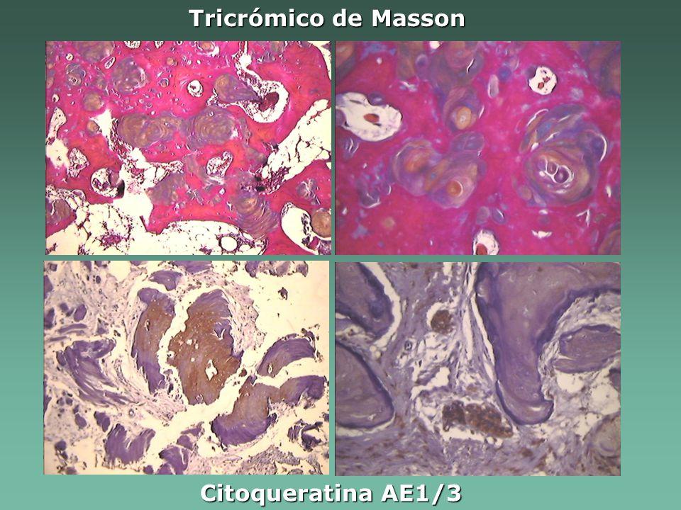 Tricrómico de Masson Citoqueratina AE1/3