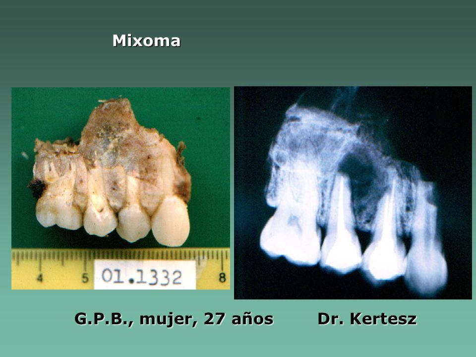 Mixoma G.P.B., mujer, 27 años Dr. Kertesz