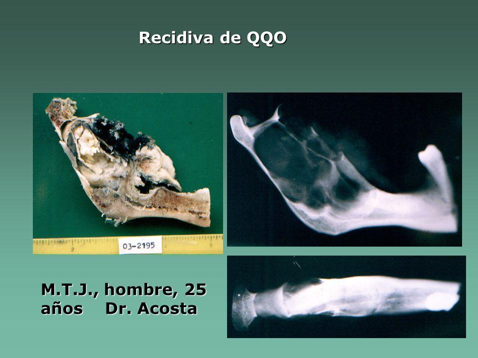 Recidiva de QQO M.T.J., hombre, 25 años Dr. Acosta