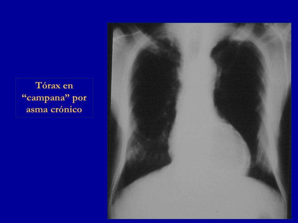Tórax en campana por asma crónico