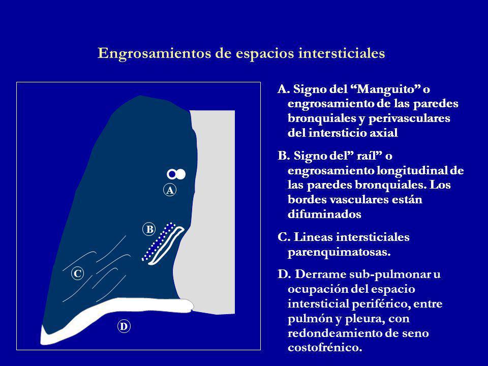 Engrosamientos de espacios intersticiales A.
