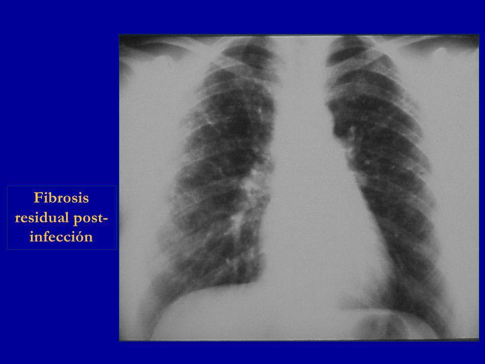 Fibrosis residual post- infección