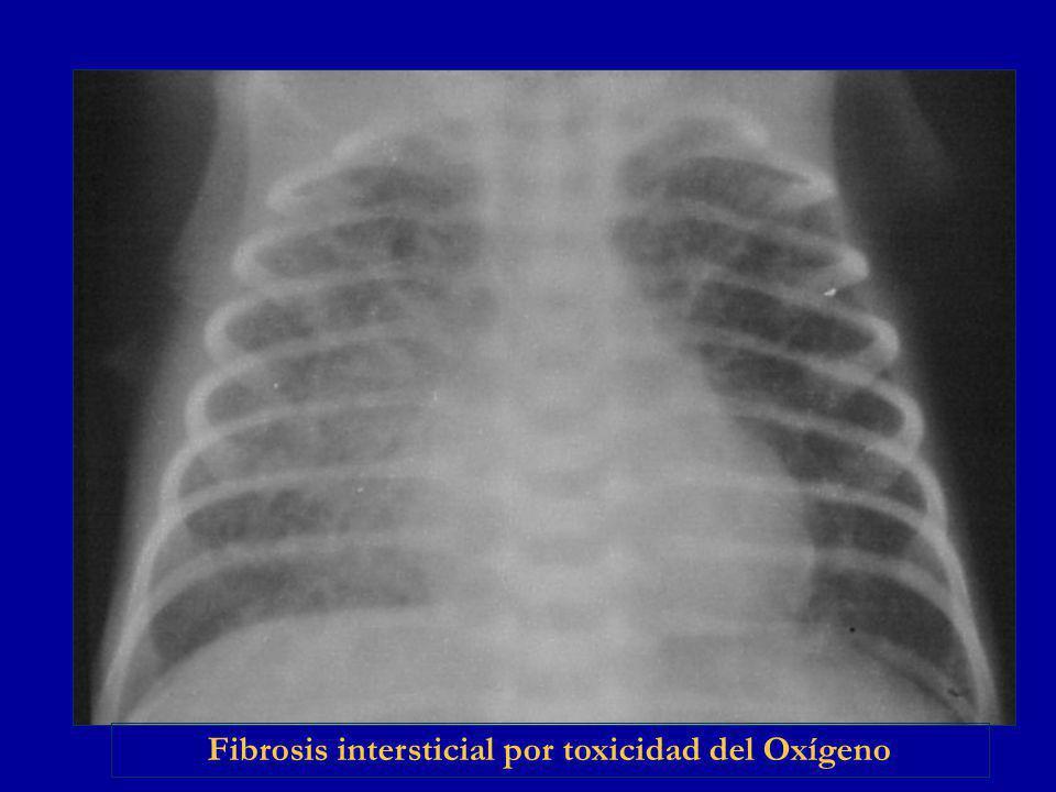 Fibrosis intersticial por toxicidad del Oxígeno