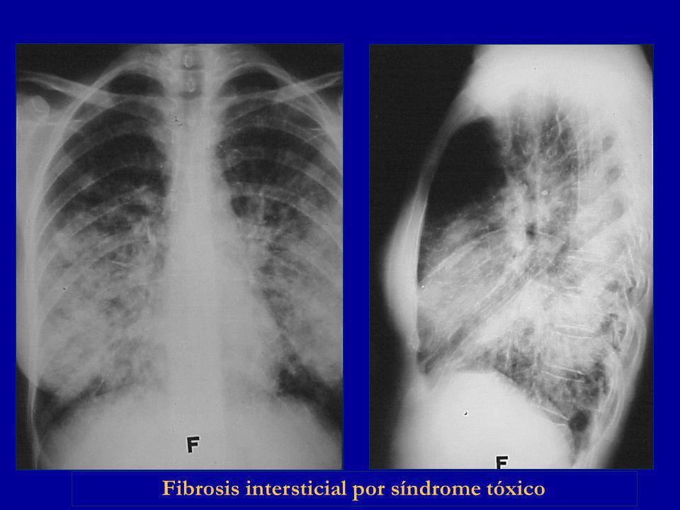 Fibrosis intersticial por síndrome tóxico