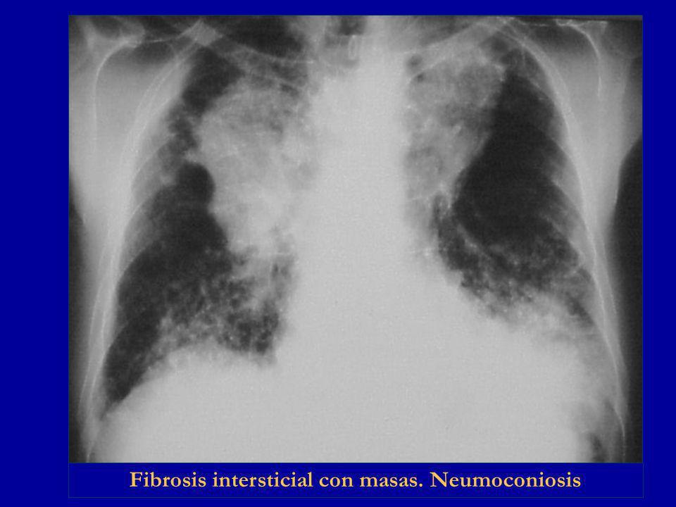 Fibrosis intersticial con masas. Neumoconiosis