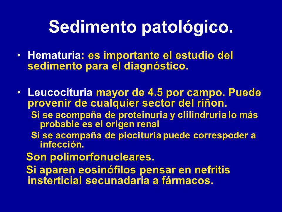 Sedimento patológico.Hematuria: es importante el estudio del sedimento para el diagnóstico.