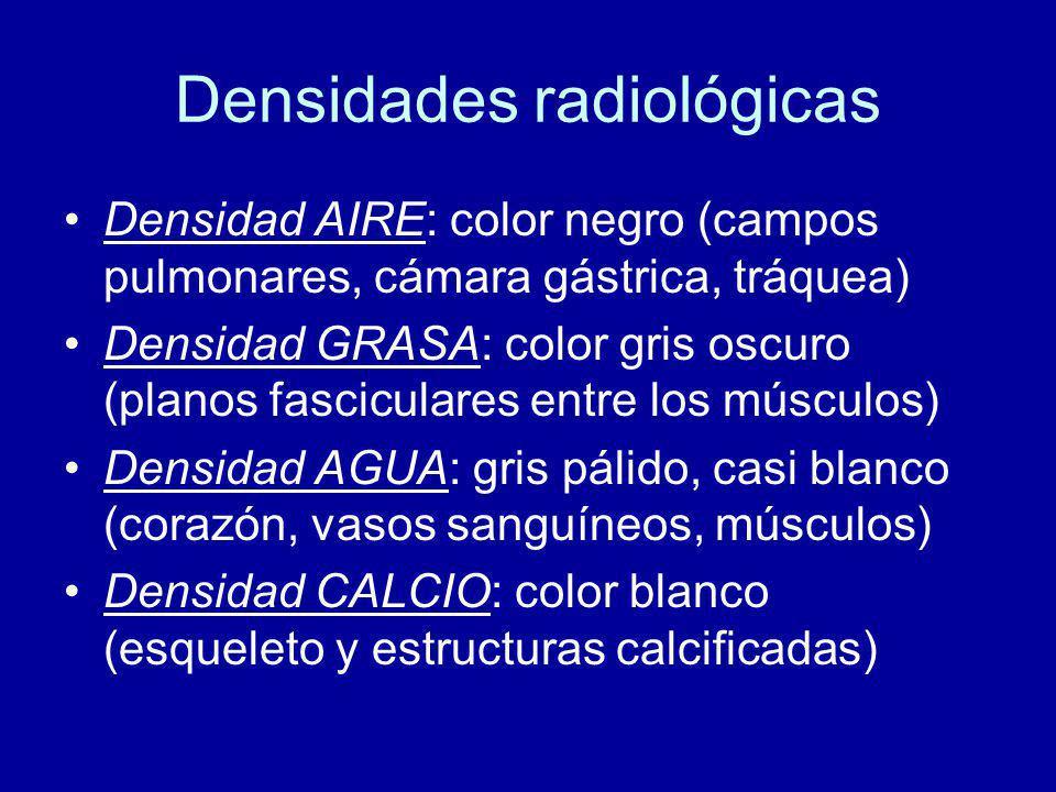 Densidades radiológicas Densidad AIRE: color negro (campos pulmonares, cámara gástrica, tráquea) Densidad GRASA: color gris oscuro (planos fasciculares entre los músculos) Densidad AGUA: gris pálido, casi blanco (corazón, vasos sanguíneos, músculos) Densidad CALCIO: color blanco (esqueleto y estructuras calcificadas)