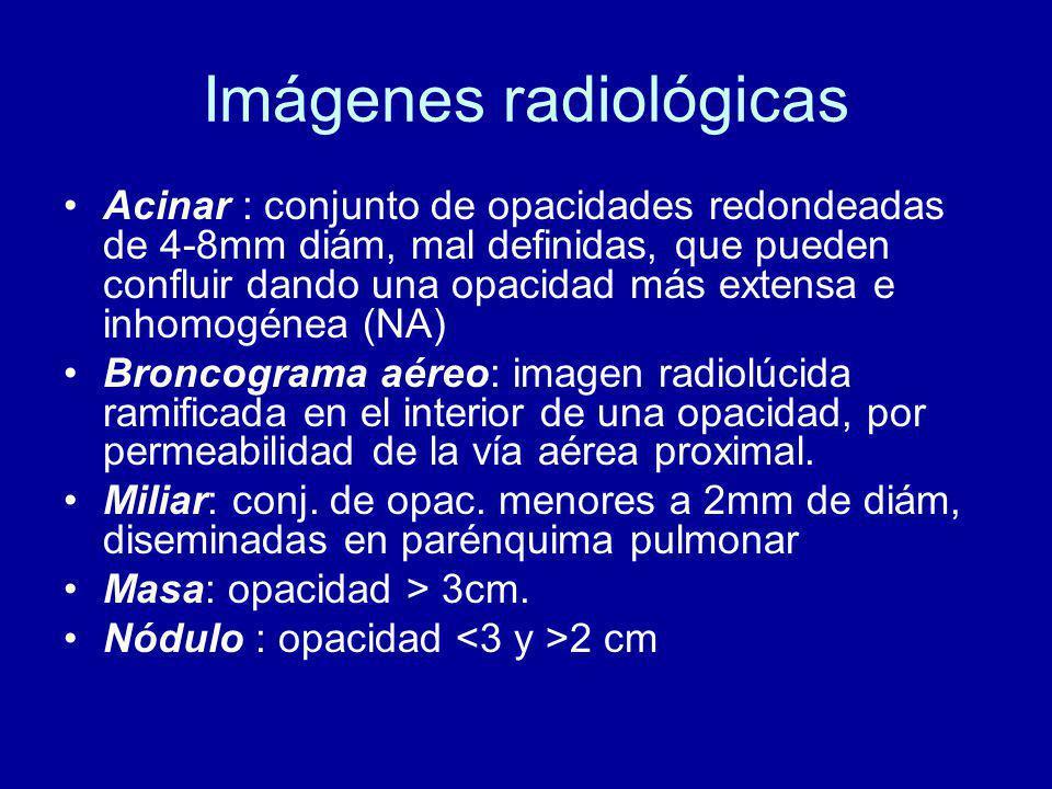 Imágenes radiológicas Acinar : conjunto de opacidades redondeadas de 4-8mm diám, mal definidas, que pueden confluir dando una opacidad más extensa e inhomogénea (NA) Broncograma aéreo: imagen radiolúcida ramificada en el interior de una opacidad, por permeabilidad de la vía aérea proximal.