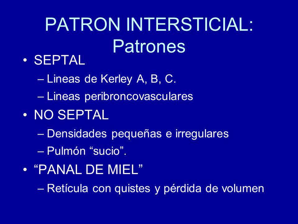 PATRON INTERSTICIAL: Patrones SEPTAL –Lineas de Kerley A, B, C.