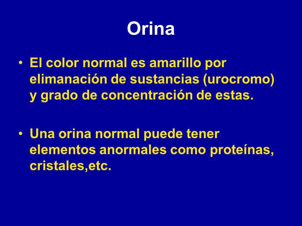 Bronquitis crónica