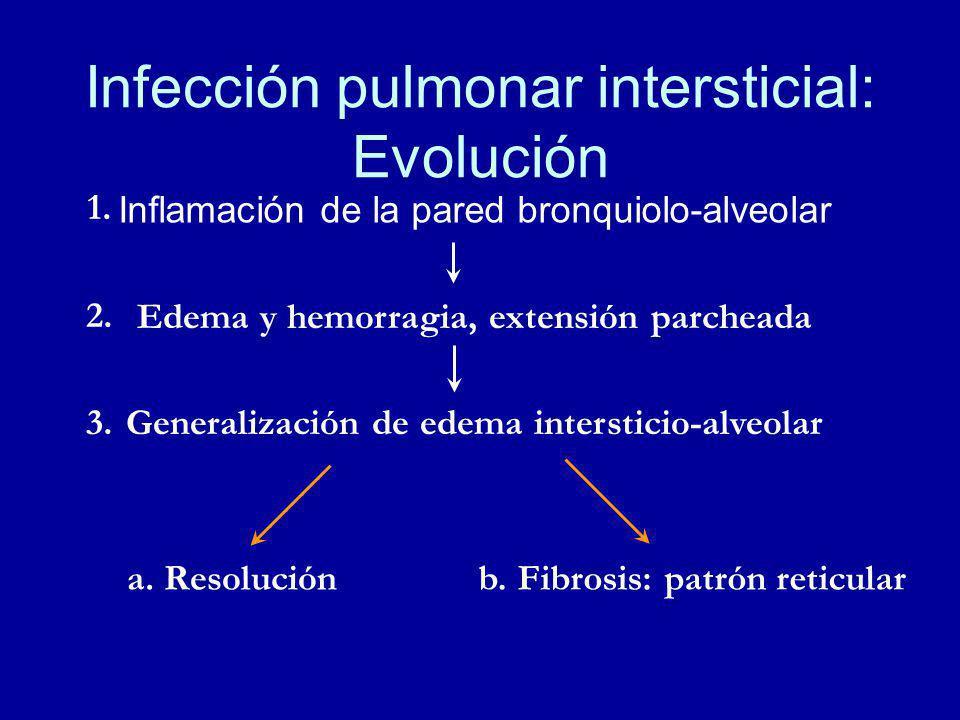 Infección pulmonar intersticial: Evolución Inflamación de la pared bronquiolo-alveolar Edema y hemorragia, extensión parcheada Generalización de edema intersticio-alveolar a.