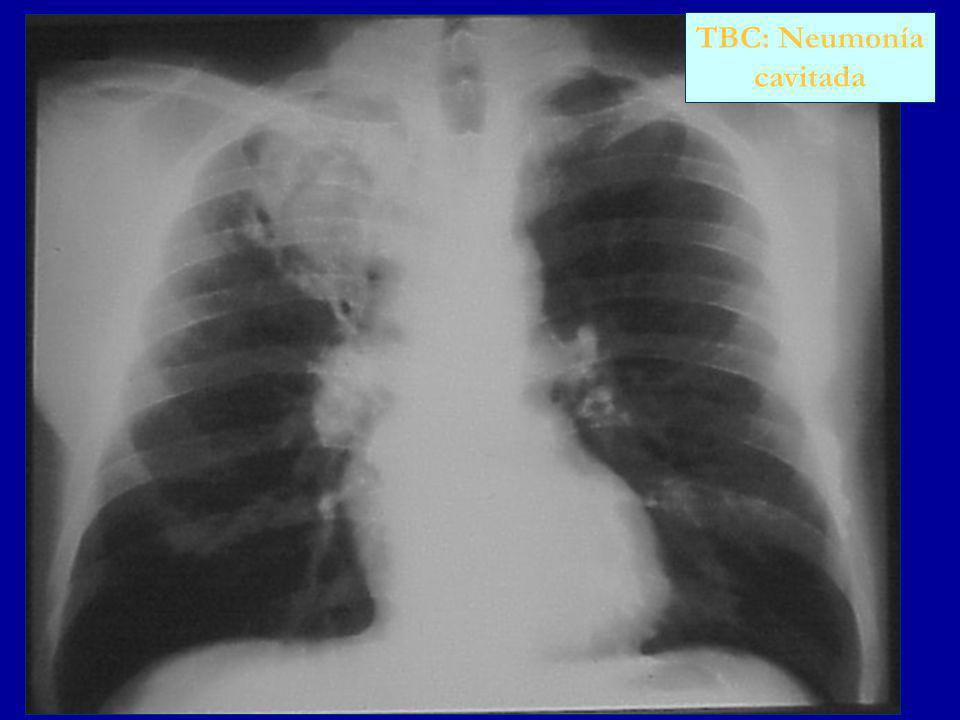 TBC: Neumonía cavitada