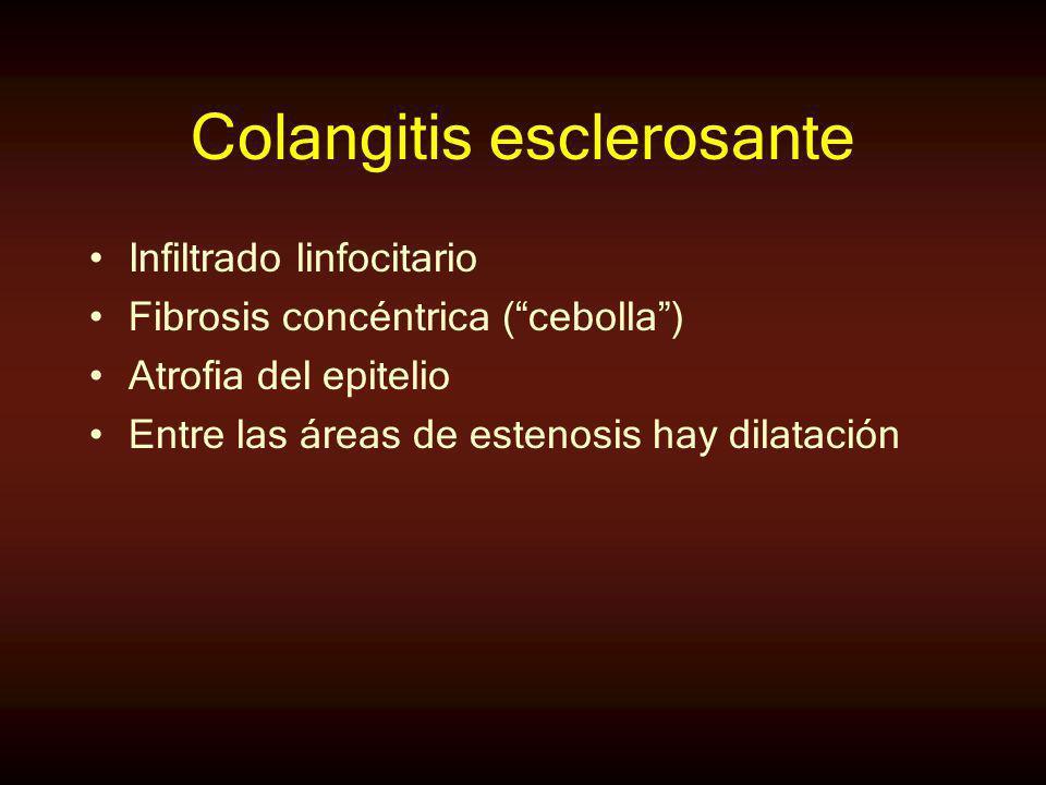 Colangitis esclerosante Infiltrado linfocitario Fibrosis concéntrica (cebolla) Atrofia del epitelio Entre las áreas de estenosis hay dilatación