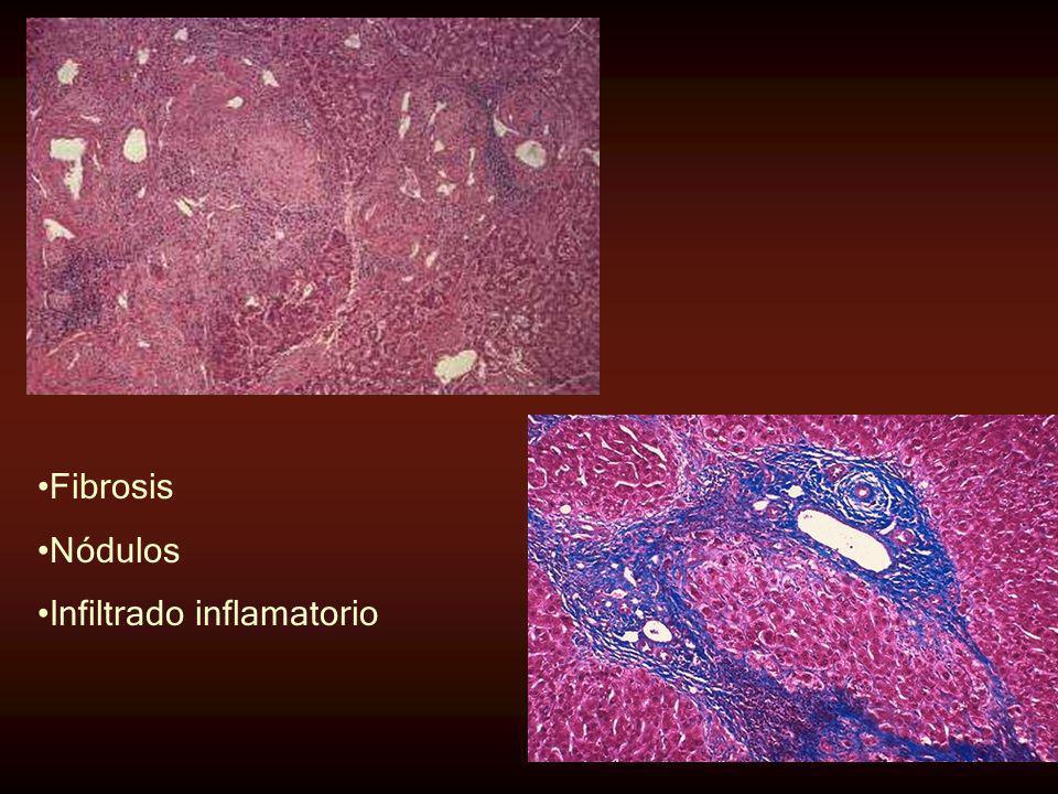 Fibrosis Nódulos Infiltrado inflamatorio
