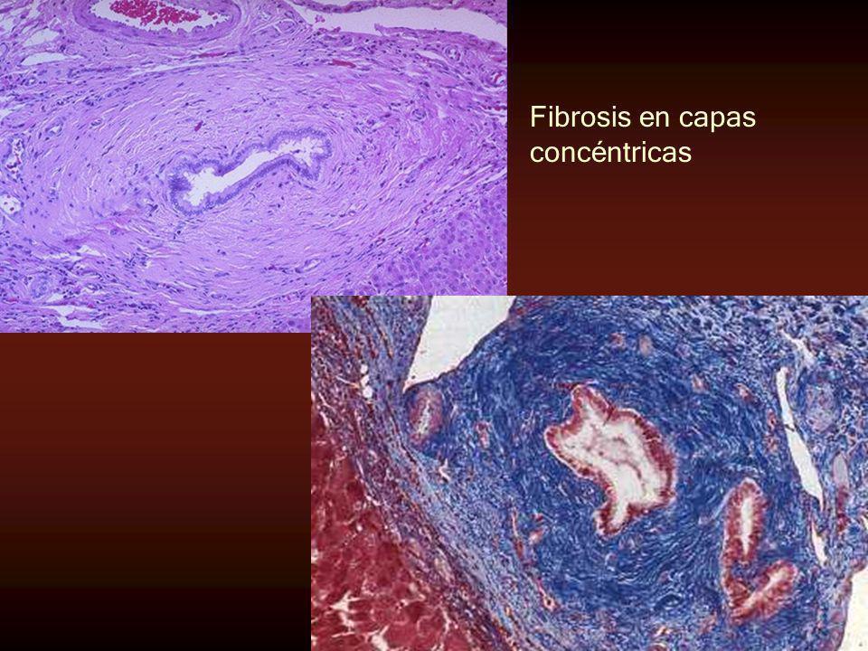 Fibrosis en capas concéntricas