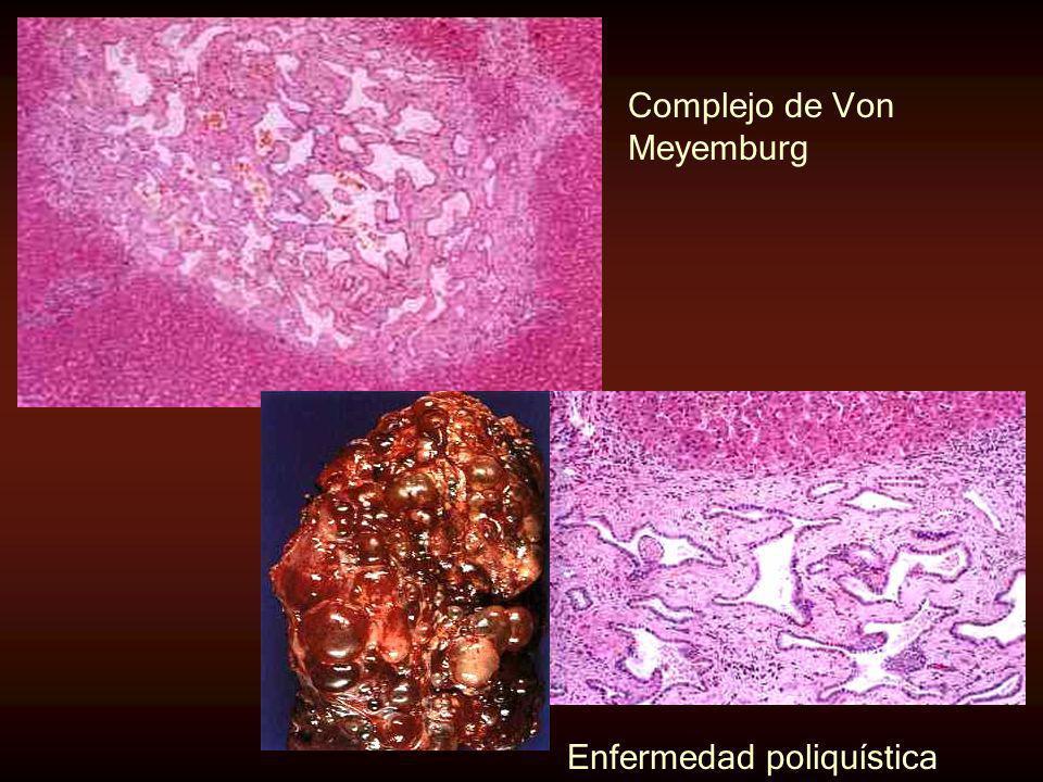 Complejo de Von Meyemburg Enfermedad poliquística