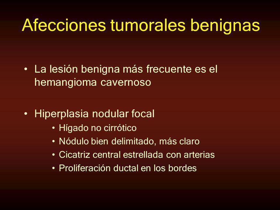 Afecciones tumorales benignas La lesión benigna más frecuente es el hemangioma cavernoso Hiperplasia nodular focal Hígado no cirrótico Nódulo bien del