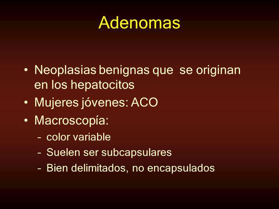 Adenomas Neoplasias benignas que se originan en los hepatocitos Mujeres jóvenes: ACO Macroscopía: –color variable –Suelen ser subcapsulares –Bien deli