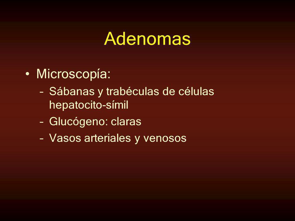 Adenomas Microscopía: –Sábanas y trabéculas de células hepatocito-símil –Glucógeno: claras –Vasos arteriales y venosos