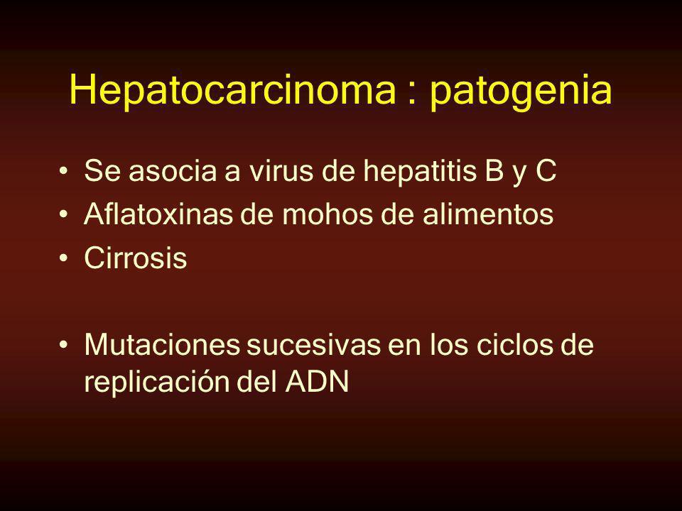 Hepatocarcinoma : patogenia Se asocia a virus de hepatitis B y C Aflatoxinas de mohos de alimentos Cirrosis Mutaciones sucesivas en los ciclos de repl