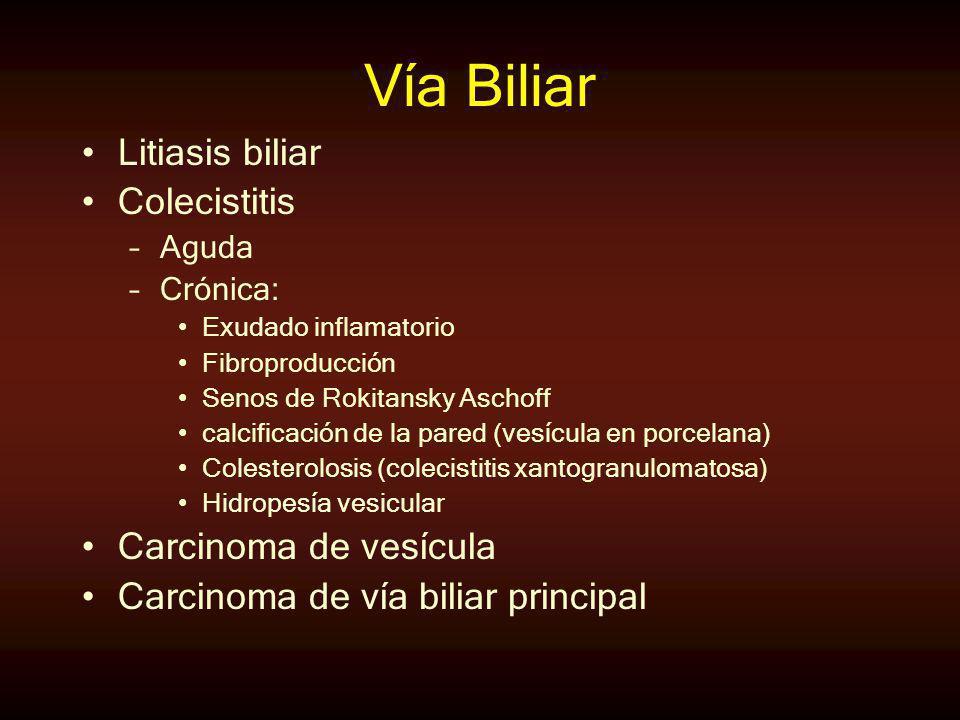 Vía Biliar Litiasis biliar Colecistitis –Aguda –Crónica: Exudado inflamatorio Fibroproducción Senos de Rokitansky Aschoff calcificación de la pared (v