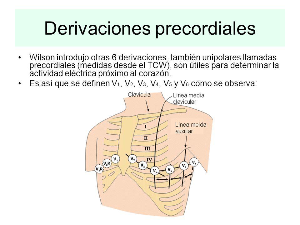 Derivaciones precordiales Wilson introdujo otras 6 derivaciones, también unipolares llamadas precordiales (medidas desde el TCW), son útiles para dete