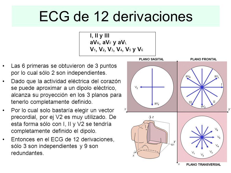ECG de 12 derivaciones I, II y III aV R, aV F y aV L V 1, V 2, V 3, V 4, V 5 y V 6 Las 6 primeras se obtuvieron de 3 puntos por lo cual sólo 2 son ind
