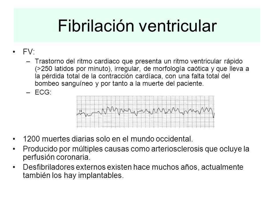 FV: –Trastorno del ritmo cardiaco que presenta un ritmo ventricular rápido (>250 latidos por minuto), irregular, de morfología caótica y que lleva a l