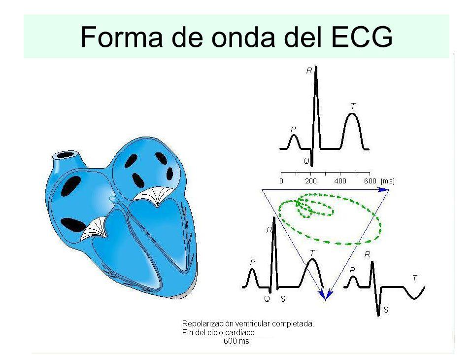 Hipótesis importante: se adopta un modelo simple de la actividad eléctrica del corazón. Se considera al corazón como un dipolo eléctrico. Dicho dipolo