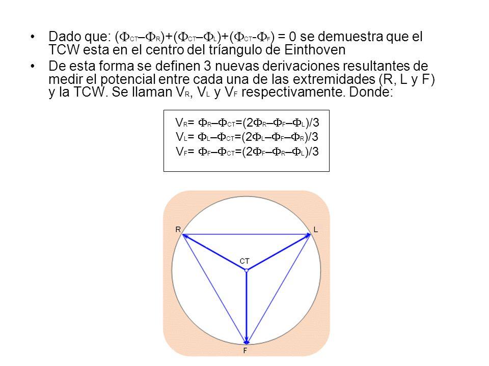 Dado que: ( CT – R )+( CT – L )+( CT - F ) = 0 se demuestra que el TCW esta en el centro del tríangulo de Einthoven De esta forma se definen 3 nuevas