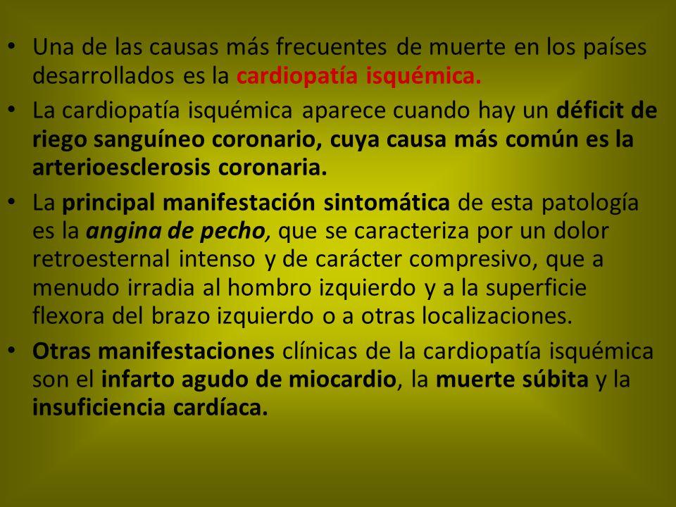 Una de las causas más frecuentes de muerte en los países desarrollados es la cardiopatía isquémica. La cardiopatía isquémica aparece cuando hay un déf
