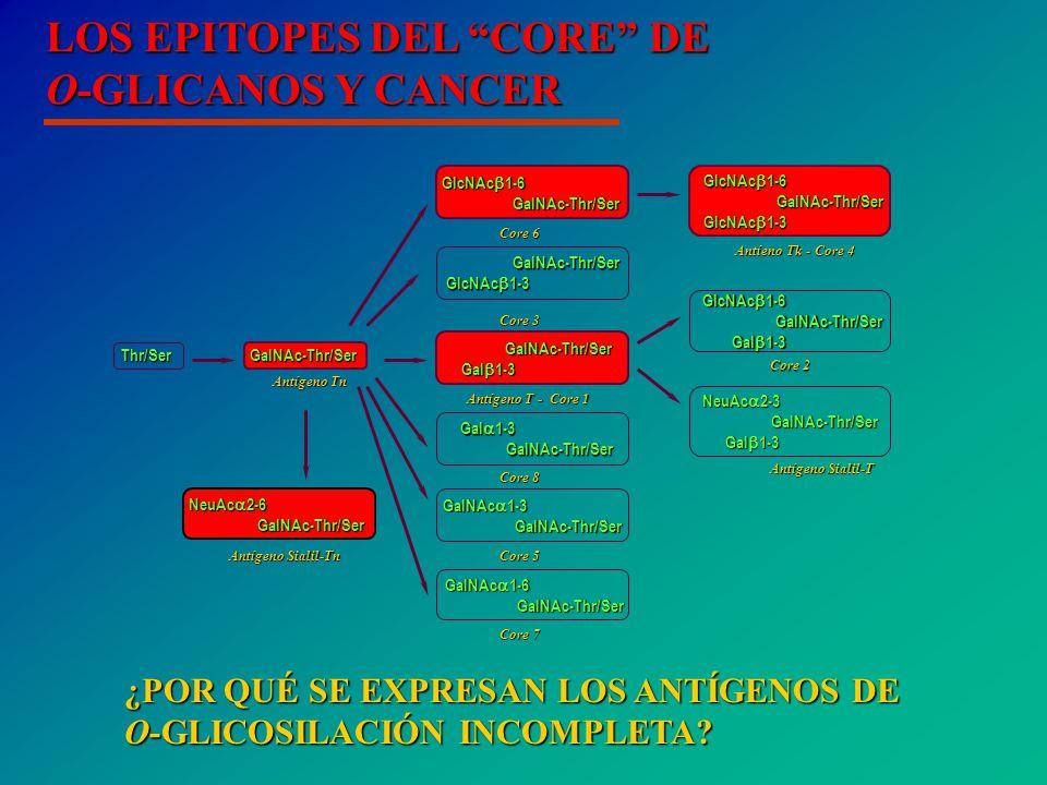 LOS EPITOPES DEL CORE DE O-GLICANOS Y CANCER GalNAc-Thr/Ser Gal 1-3 Gal 1-3 GalNAc-Thr/Ser Thr/Ser Antígeno T - Core 1 Antígeno Tn GlcNAc 1-6 GalNAc-Thr/Ser GalNAc-Thr/Ser Gal 1-3 Gal 1-3 Core 2 GalNAc-Thr/Ser GalNAc-Thr/Ser GlcNAc 1-3 GlcNAc 1-3 Core 3 GlcNAc 1-6 GalNAc-Thr/Ser GalNAc-Thr/Ser GlcNAc 1-3 GlcNAc 1-3 Antíeno Tk - Core 4 GlcNAc 1-6 GalNAc-Thr/Ser GalNAc-Thr/Ser Core 6 GalNAc 1-3 GalNAc-Thr/Ser GalNAc-Thr/Ser Core 5 GalNAc 1-6 GalNAc-Thr/Ser GalNAc-Thr/Ser Core 7 Gal 1-3 GalNAc-Thr/Ser GalNAc-Thr/Ser Core 8 NeuAc 2-3 GalNAc-Thr/Ser GalNAc-Thr/Ser Gal 1-3 Gal 1-3 Antígeno Sialil-T NeuAc 2-6 GalNAc-Thr/Ser GalNAc-Thr/Ser Antígeno Sialil-Tn ¿POR QUÉ SE EXPRESAN LOS ANTÍGENOS DE O-GLICOSILACIÓN INCOMPLETA?