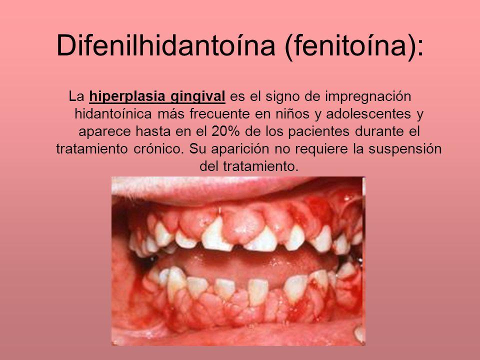 La hiperplasia gingival es el signo de impregnación hidantoínica más frecuente en niños y adolescentes y aparece hasta en el 20% de los pacientes dura