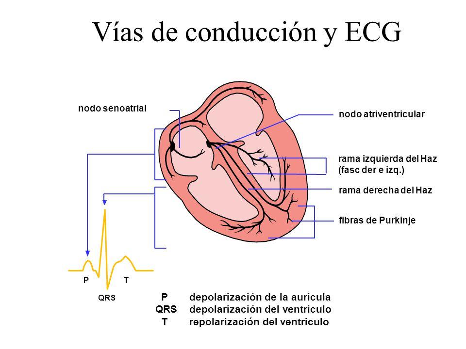 Vías de conducción y ECG nodo senoatrial nodo atriventricular rama izquierda del Haz (fasc der e izq.) rama derecha del Haz fibras de Purkinje P depolarización de la aurícula QRS depolarización del ventriculo T repolarización del ventriculo PT QRS