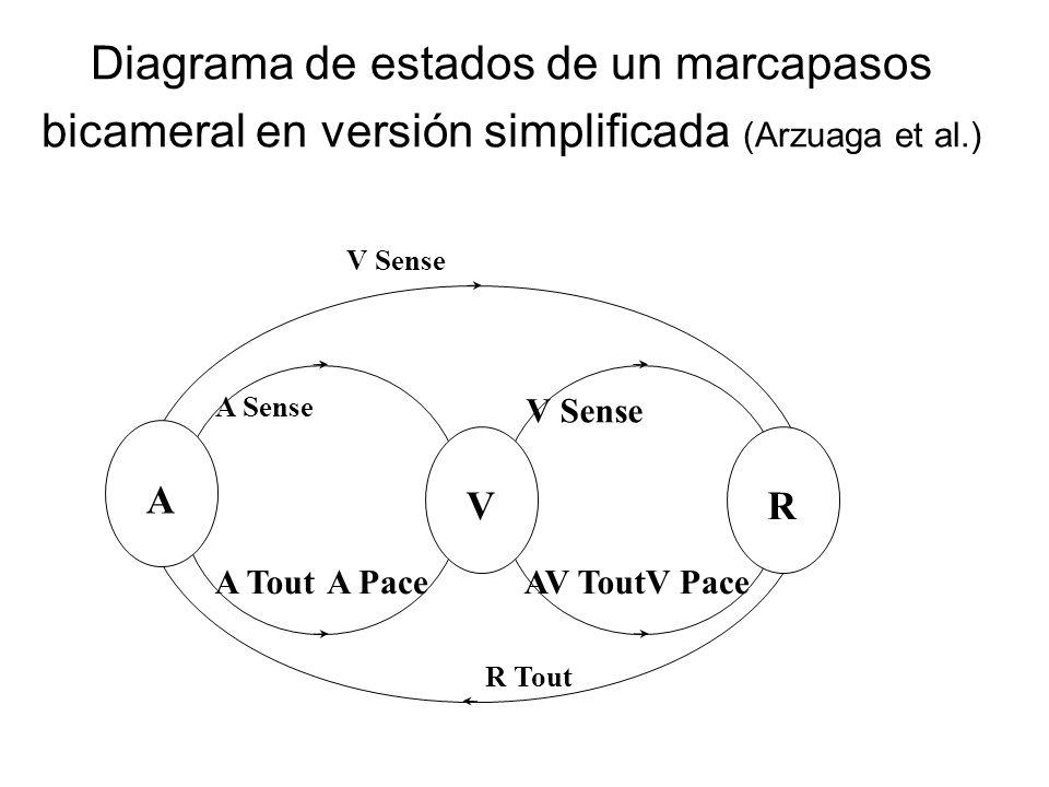 Diagrama de estados de un marcapasos bicameral en versión simplificada (Arzuaga et al.) A VR A Tout A Sense AV Tout V Sense R Tout V PaceA Pace