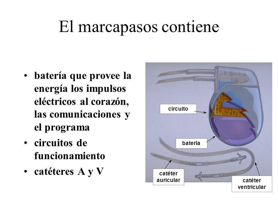 batería que provee la energía los impulsos eléctricos al corazón, las comunicaciones y el programa circuitos de funcionamiento catéteres A y V circuito bateria El marcapasos contiene catéter auricular catéter ventricular