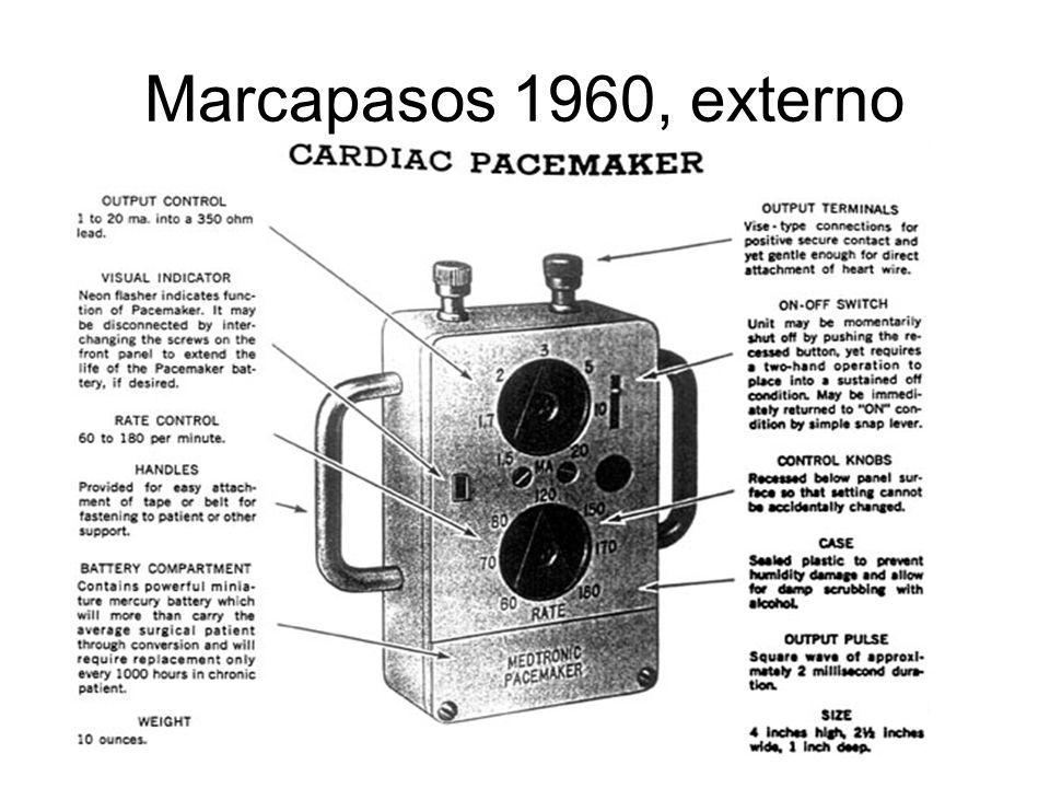 Marcapasos 1960, externo