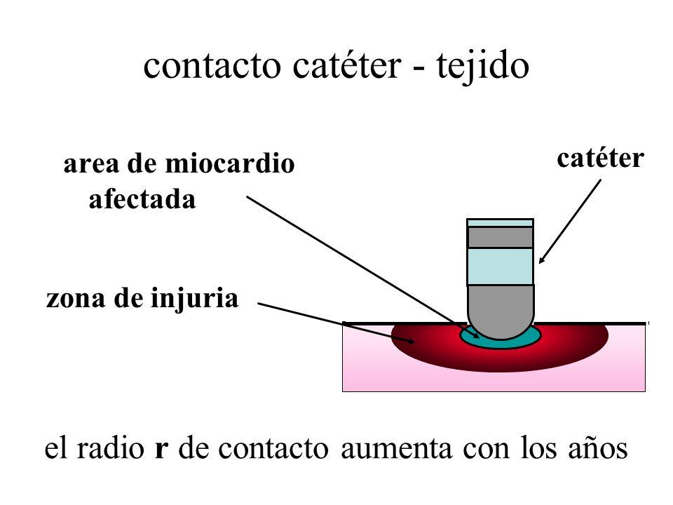 contacto catéter - tejido area de miocardio afectada zona de injuria catéter el radio r de contacto aumenta con los años